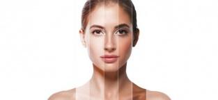 Il fototipo della pelle: l'importanza di conoscerlo